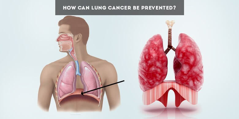 Learn How Can Lung Cancer Be Prevented With Some Simple Steps