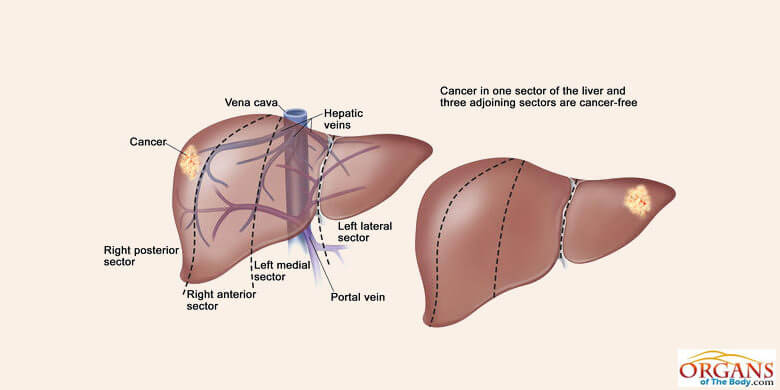 Types Of Liver Diseases And Disorders In Human Beings